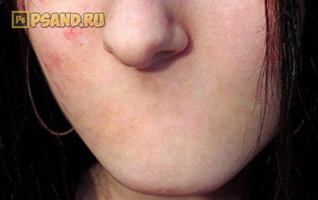 Убрать рот с лица на фотографии